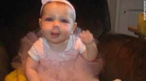 Eden bayi Yahudi penderita kelainan genetika